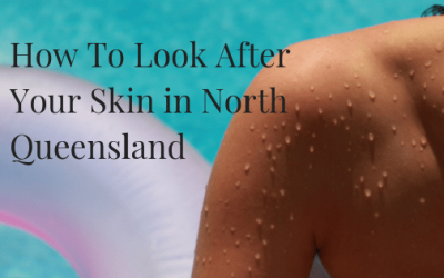 How To Look After Your Skin in North Queensland